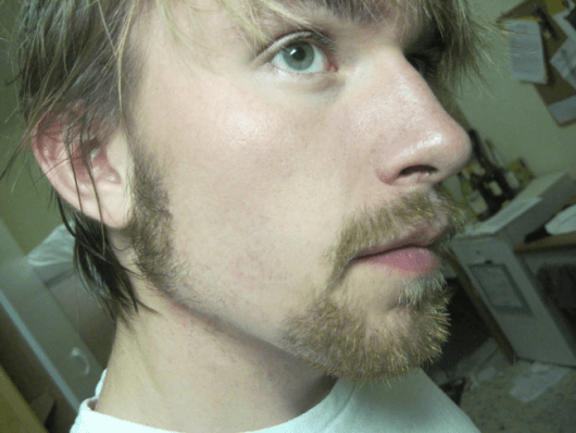 rosto redondo barba