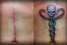 cicatriz-bariatrica-3
