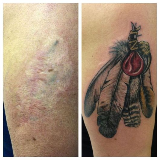 cicatriz-tatuagem