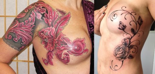 mamoplastia-tattoo
