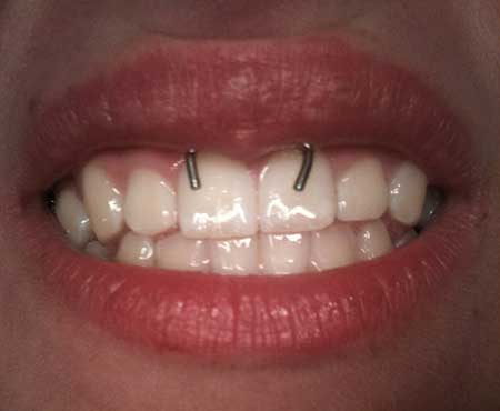 tipo-joia-piercing
