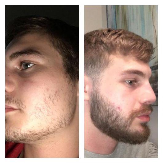 Minoxidil - antes e depois