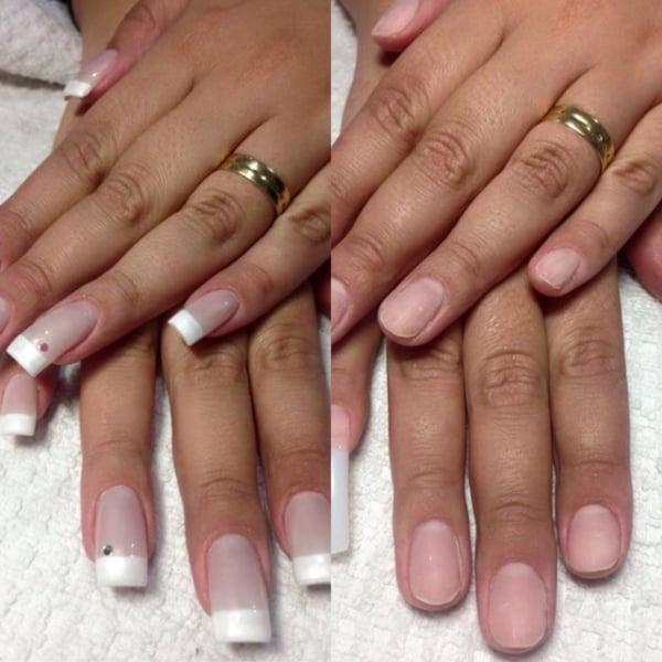 antes e depois da aplicação das unhas de porcelana 13