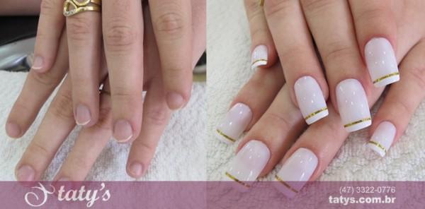 antes e depois da aplicação das unhas de porcelana 14