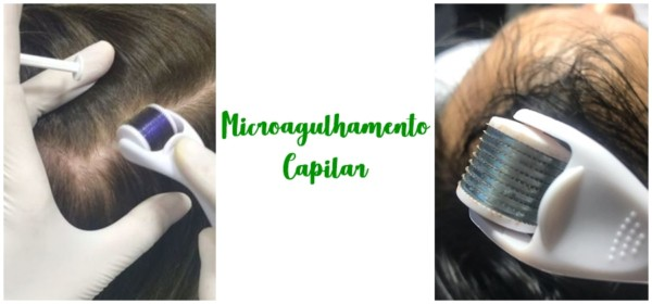 microagulhamento capilar