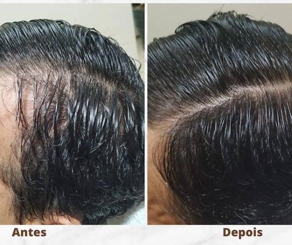 tratamento para estimular nascimento de cabelo