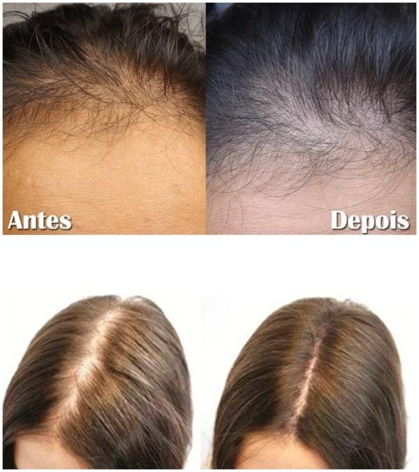 antes e depois de microagulhamento capilar feminino