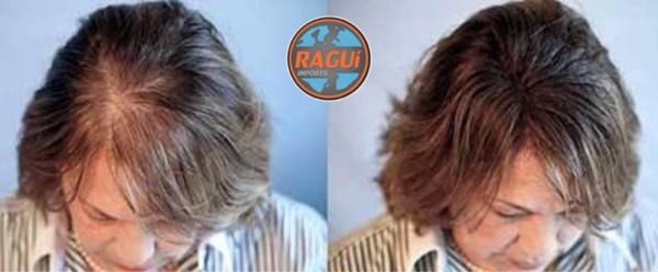 tratamento feminino para crescer cabelo