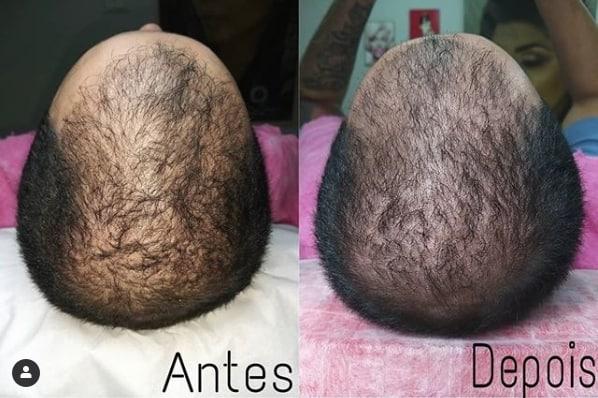 tratamento para combater queda de cabelo e incentivar crescimento dos fios