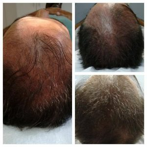 antes e depois de tratamento para crescer cabelo