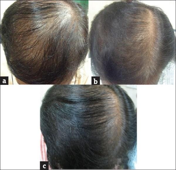 tratamento de microagulhamento antes e depois