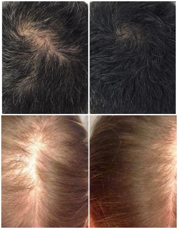resultados de tratamento capilar para crescimento de cabelo