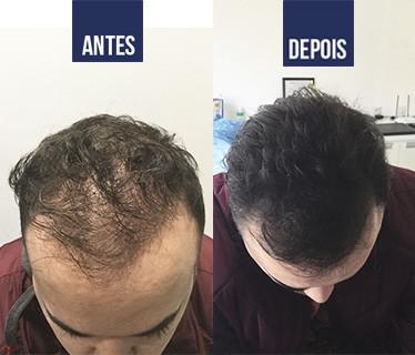 resultado de microagulhamento em cabelo masculino
