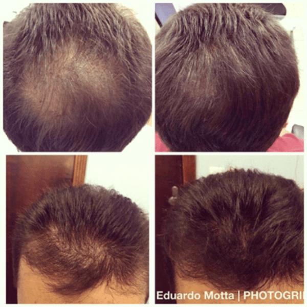 resultado de tratamento para crescimento do cabelo
