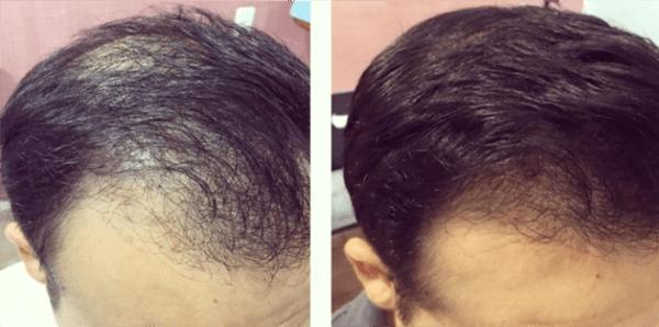 antes e depois da técnica de microagulhamento