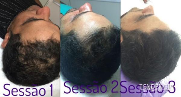 resultado de técnica para estimular crescimento do cabelo
