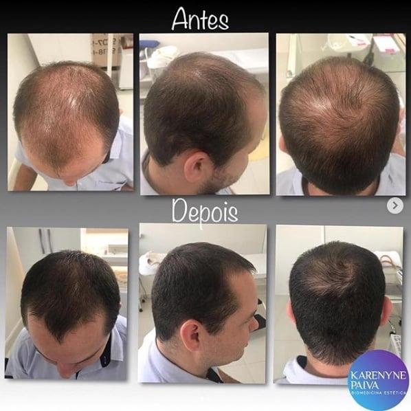 tratamento para incentivar nascimento de cabelo