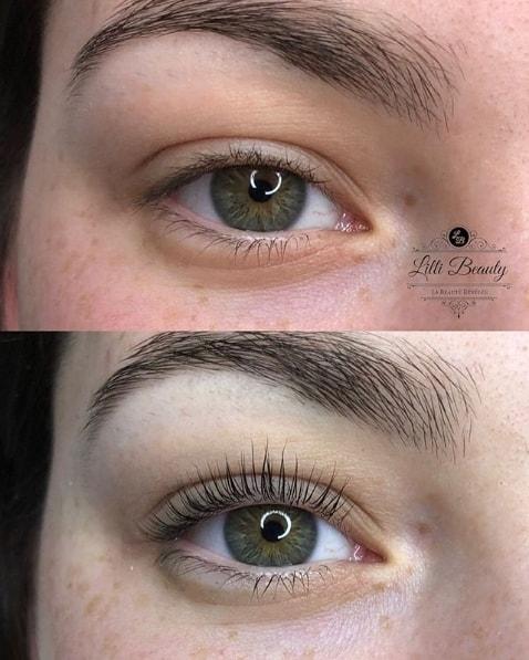 antes e depois de tratamento para curvar os cílios