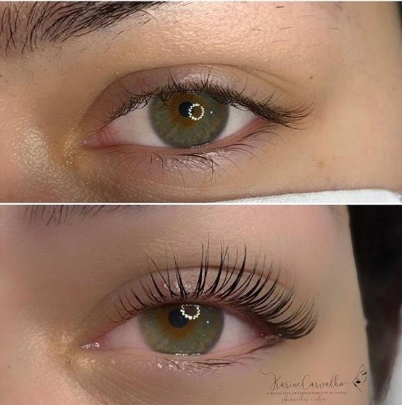 foto antes e depois de tratamento para curvar os cílios