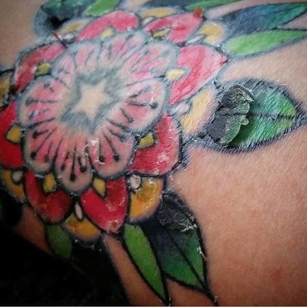 o que fazer para diminuir coceira na tatuagem descascando